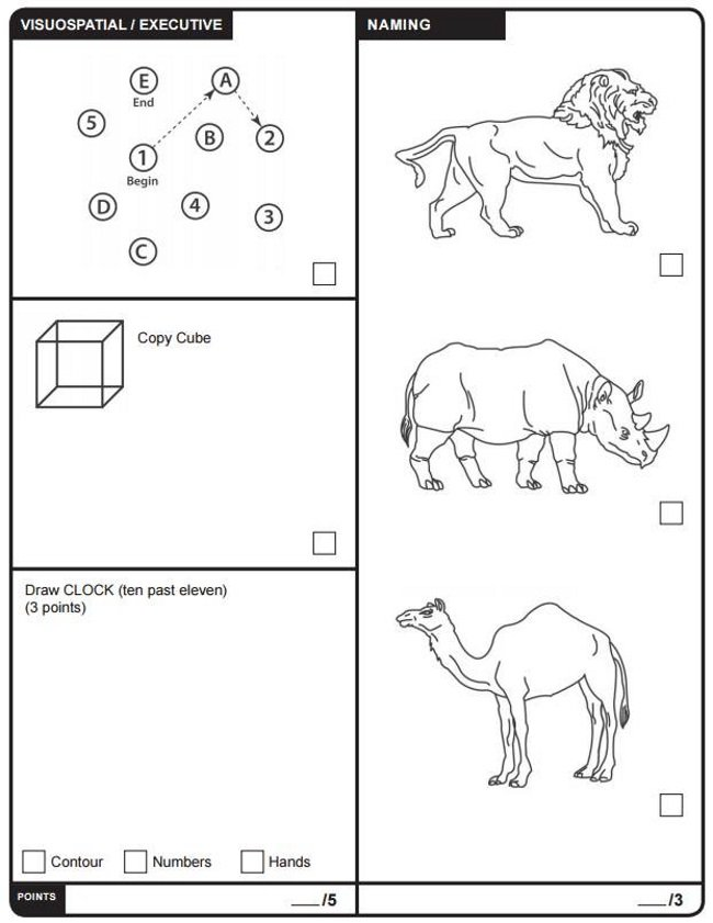 Montreal Cognitive Assessment Test MOCA Conservative News Today
